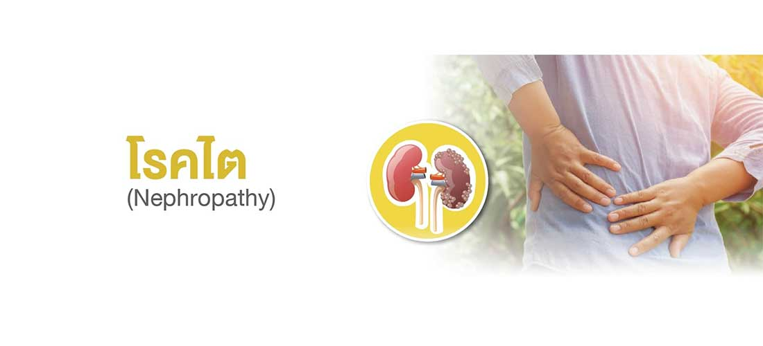 Prevention-kidney-disease
