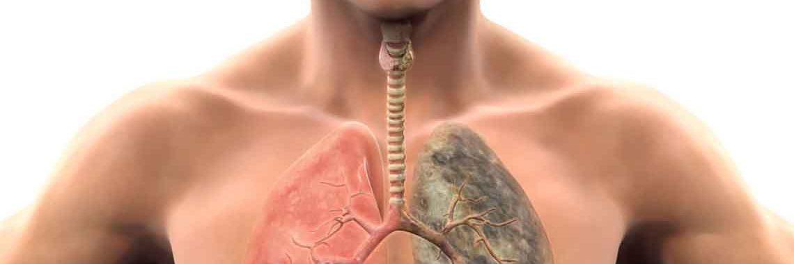Cancer-disease-human