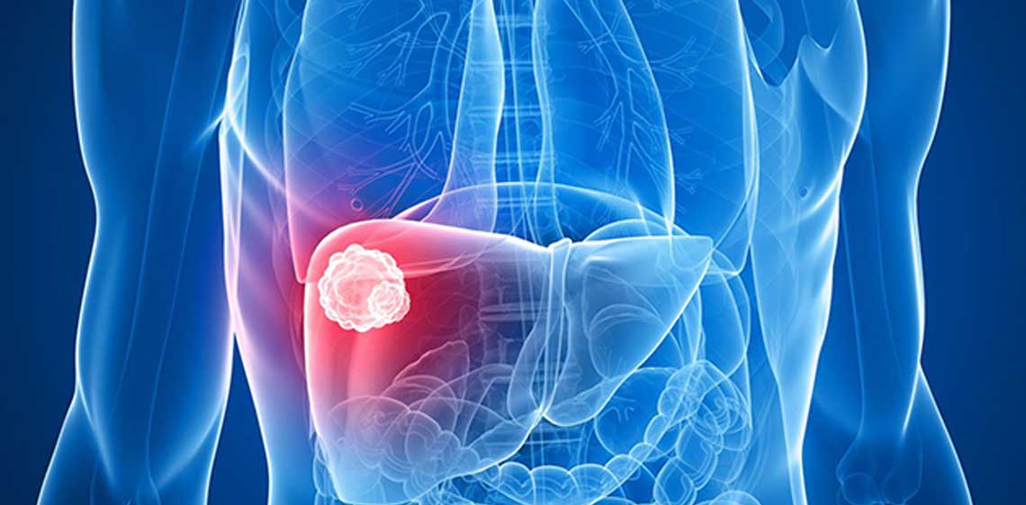 Liver-Cancer-pic